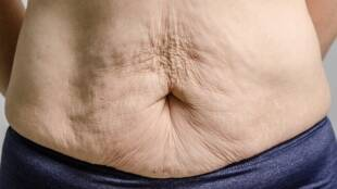 skin tightening, how to make your skin tighter during weight loss, weight loss skin tightening