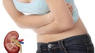 Kidney Stone, Remedies for Kidney Stones, Kidney Stones symptoms, homeopathy