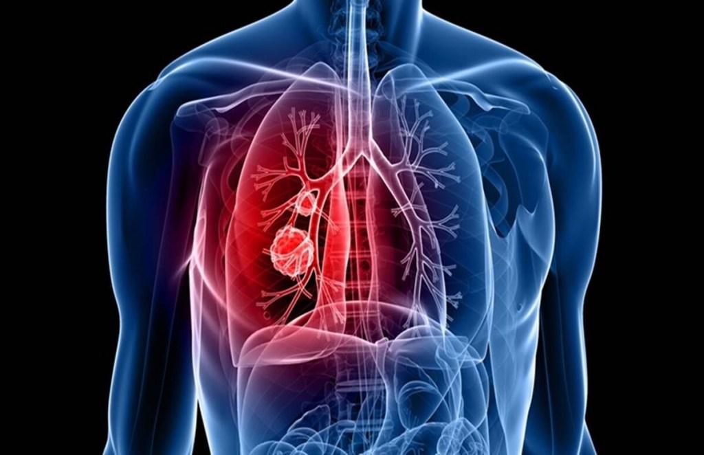 Coronavirus, healthy lungs, corona, covid 19, pneumonia