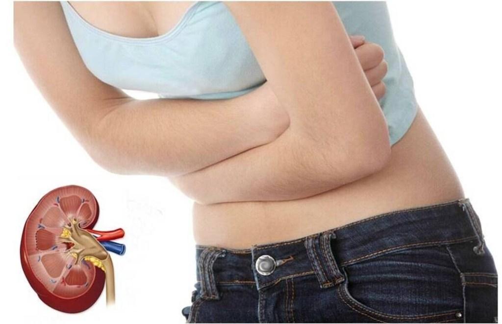 Kidney, Kidney Stone, Remedies for Kidney Stones, Kidney Stones symptoms