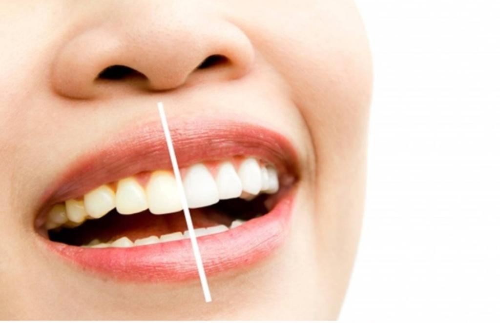 teeth whitening, remedies for teeth whitening, tips for teeth