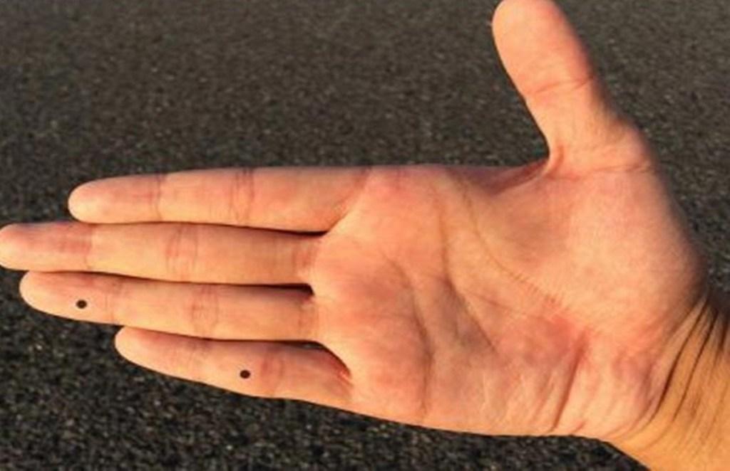 body mole, face mole, mole on face, palm mole meaning, hand mole meaning, moles meaning in hindi
