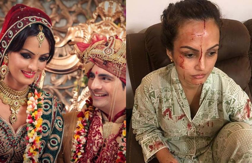 Karan Mehra Nisha Rawal: मांग में सिंदूर से माथे पर खून तक, करण मेहरा संग कुछ ऐसा रहा है निशा रावल का रिश्ता - Jansatta