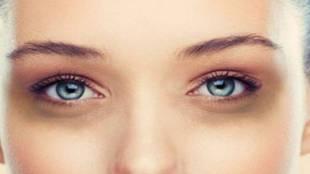 Dark circle, Beauty tips, dark circle home remedies