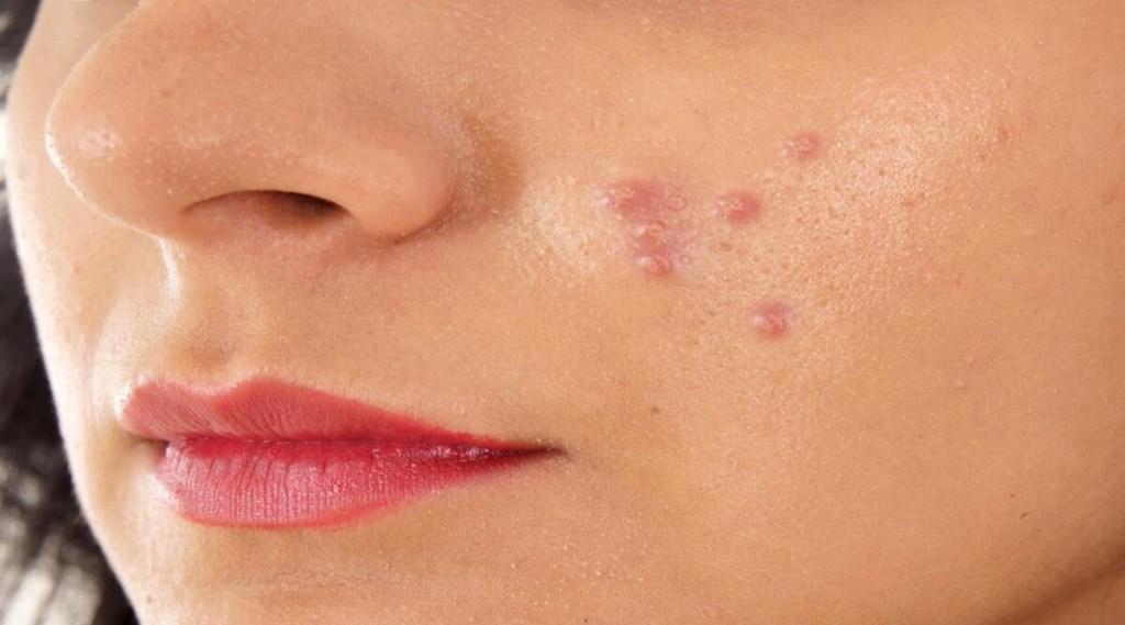 Skin Care, skin glow, flawless skin