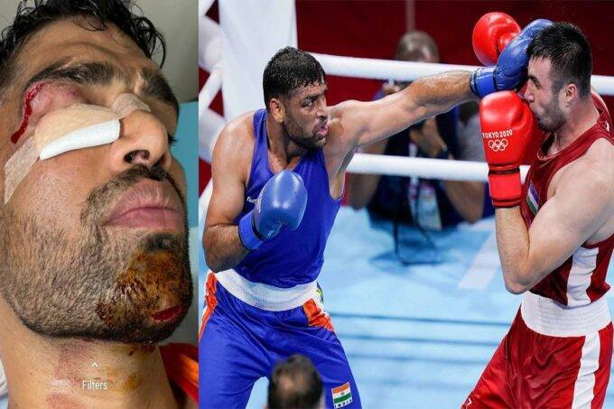 tokyo-olympics-satish-kumar-fought-his-quarterfinal-bout-with-several-stiches-on-his-face-lost-match-but-won-millions-of-hearts