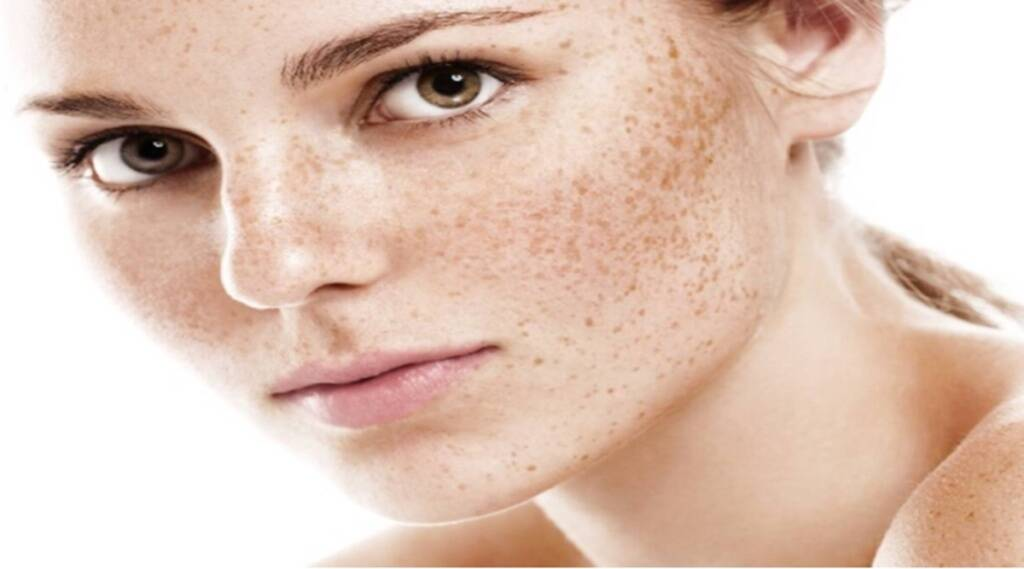 Lifestyle News, Skin Care, Freckles