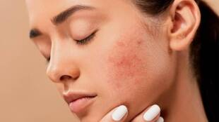Lifestyle News, Pimples, Skin Care