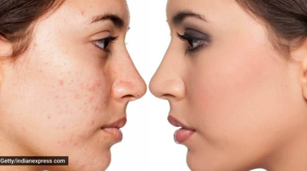 pimples, reason of pimples, how to treat pimples
