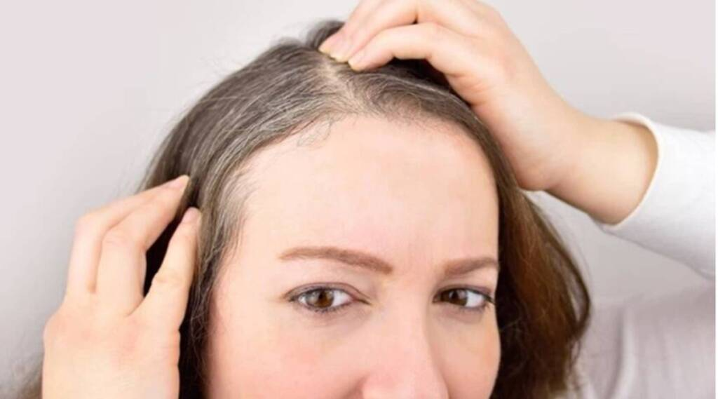 Lifestyle News, White Hair, Home Remedies For White Hair