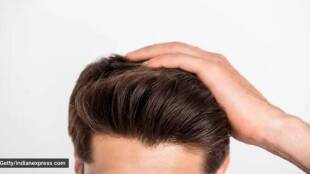 Hair Fall, Baldness