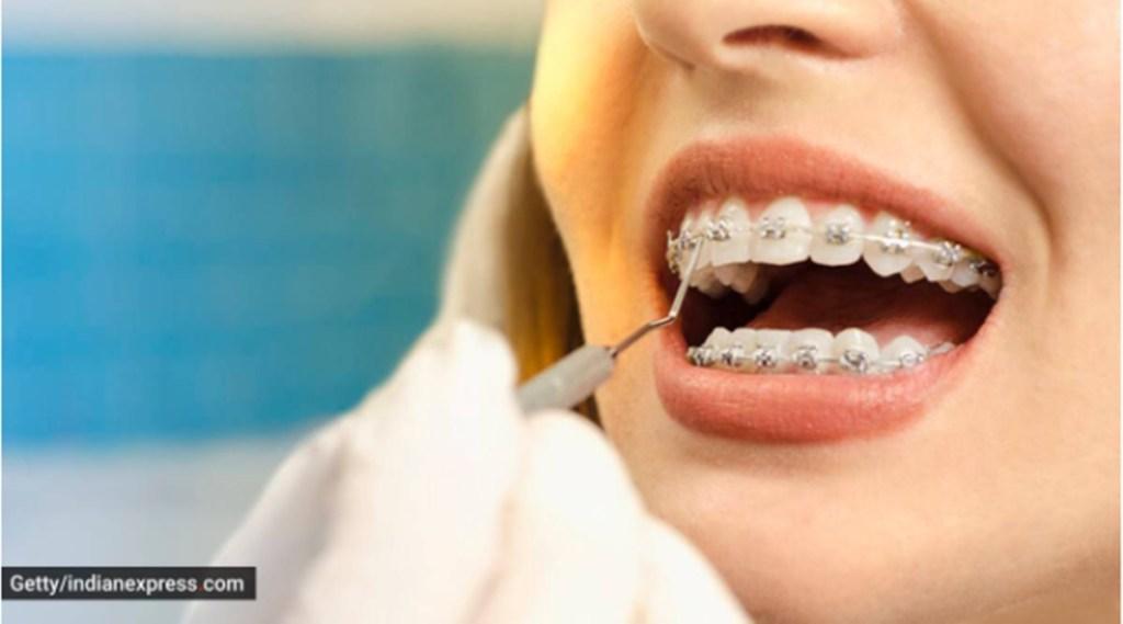 cavity, teeth cavity, oral health