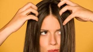 oily hair, oily hair care, hair care