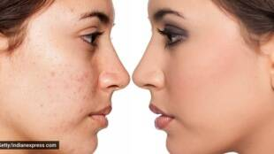Pimples, Skin Care, Lifestyle News